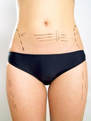 Cómo tener el cuerpo que siempre deseaste sin cirugía