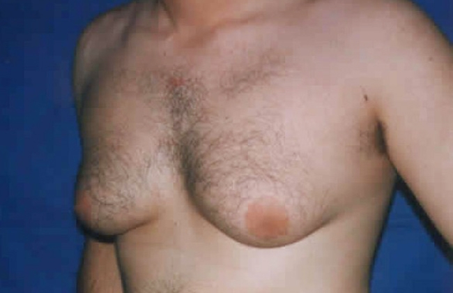 El hombre femenino crece los senos